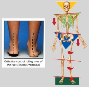 Illustration of the benefit of Orthotics