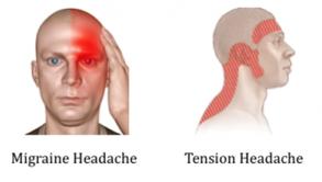 migrane headache and tention headache